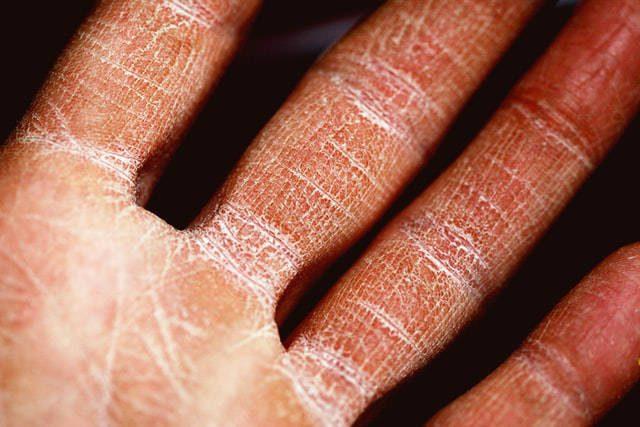 peritos en dermatología