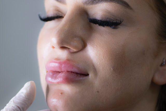 Reclamación Botox